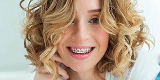 Ортодонтическая стоматология 4