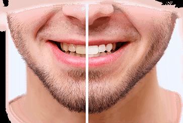 Недорогое отбеливание зубов