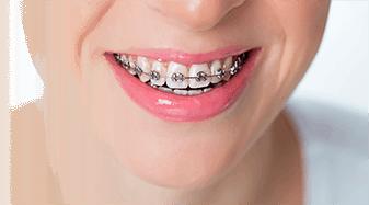 Недорогое отбеливание зубов 3