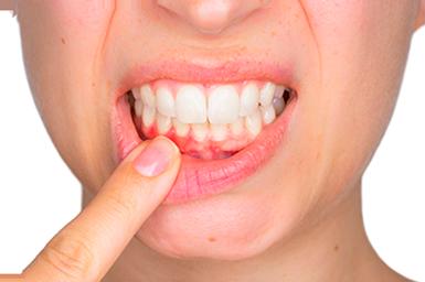 Реставрация зубов 2